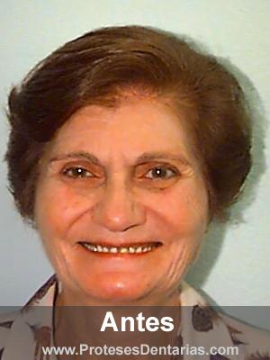 Antes da prótese dentária - paciente 2