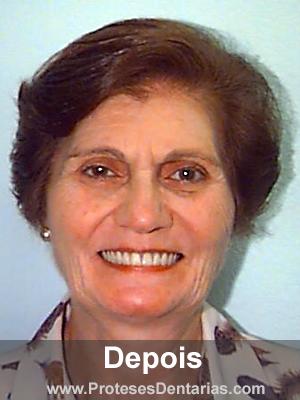 Depois da prótese dentária - paciente 2