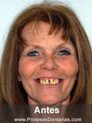 Antes da prótese dentária - paciente 4